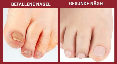 Fußpilz Symptome